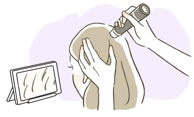 頭皮検査(初回と状態に応じて検査)